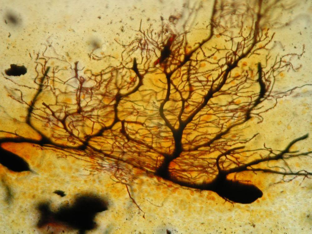 Purkinje-Zellen im Kleinhirn
